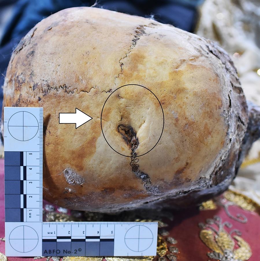 2.Il cranio di San Davino con in evidenza la lesione che mostra i segni del cauterio pentagonale