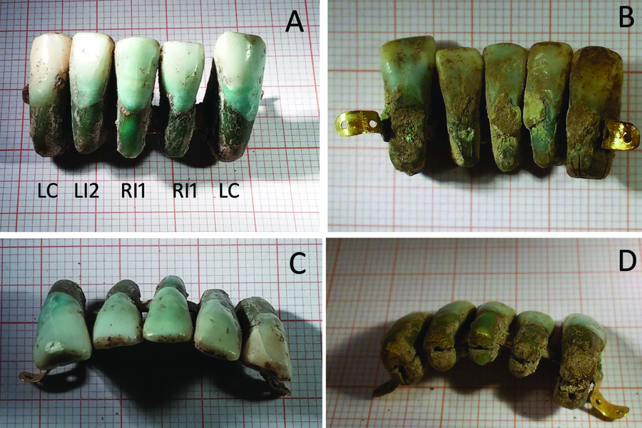 Image of the Oldest Known Denture