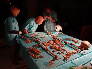 Fornaciari analizza i resti di Giovanni Bande Nere